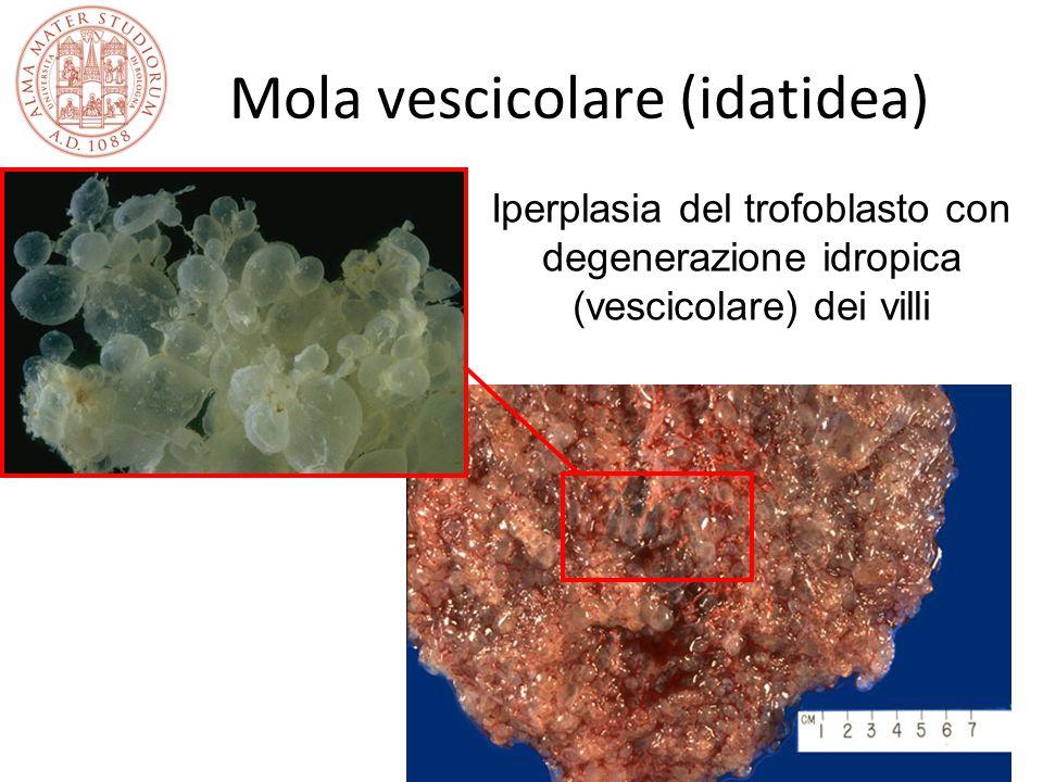 Prof. Gianluigi Pilu Università di Bologna Mola vescicolare (idatidea) Iperplasia del trofoblasto con degenerazione idropica (vescicolare) dei villi