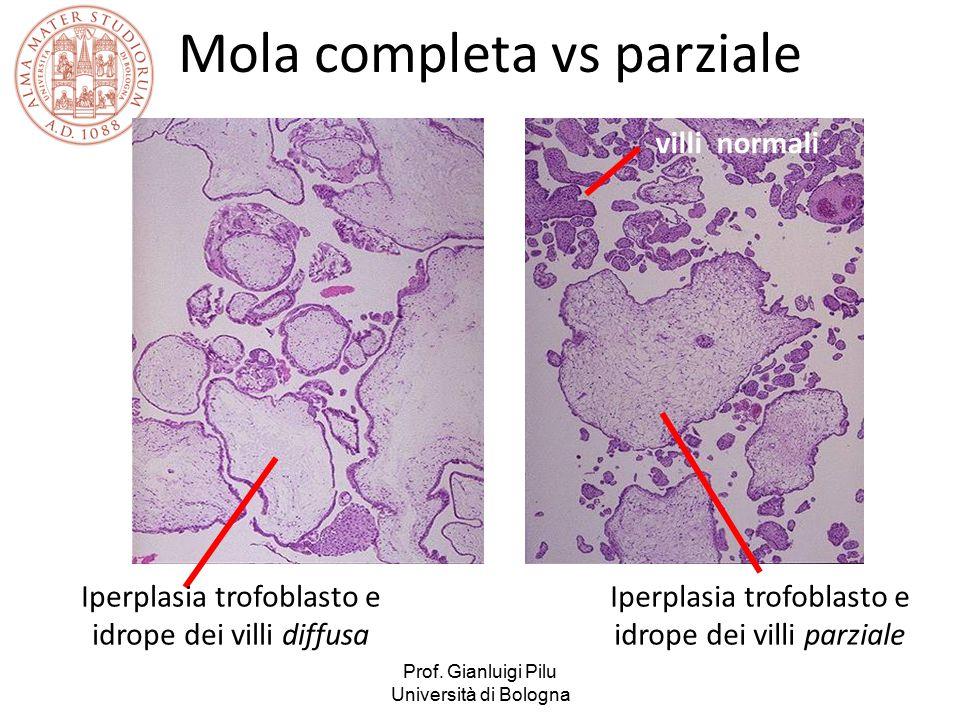 Prof. Gianluigi Pilu Università di Bologna Iperplasia trofoblasto e idrope dei villi diffusa Iperplasia trofoblasto e idrope dei villi parziale villi