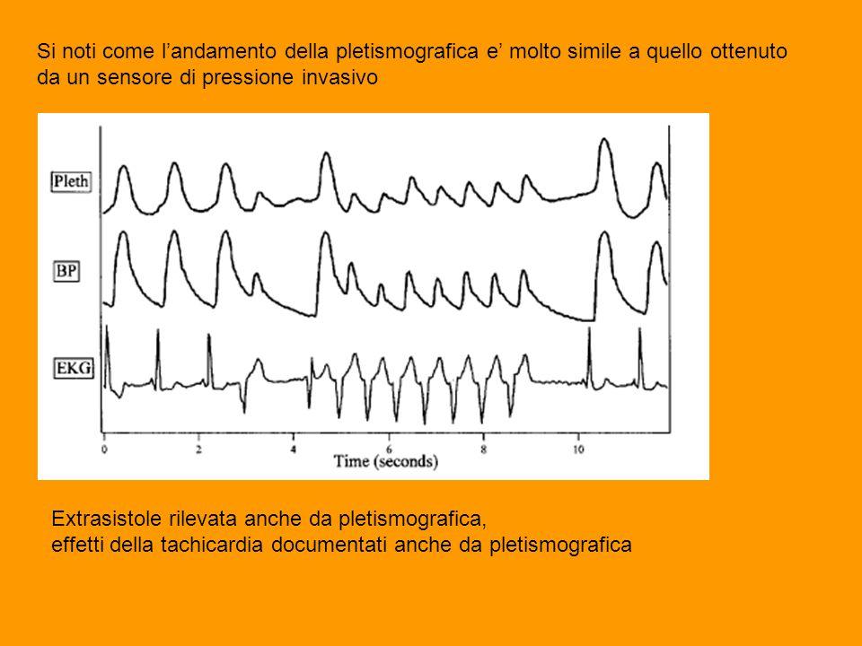 Si noti come l'andamento della pletismografica e' molto simile a quello ottenuto da un sensore di pressione invasivo Extrasistole rilevata anche da pletismografica, effetti della tachicardia documentati anche da pletismografica