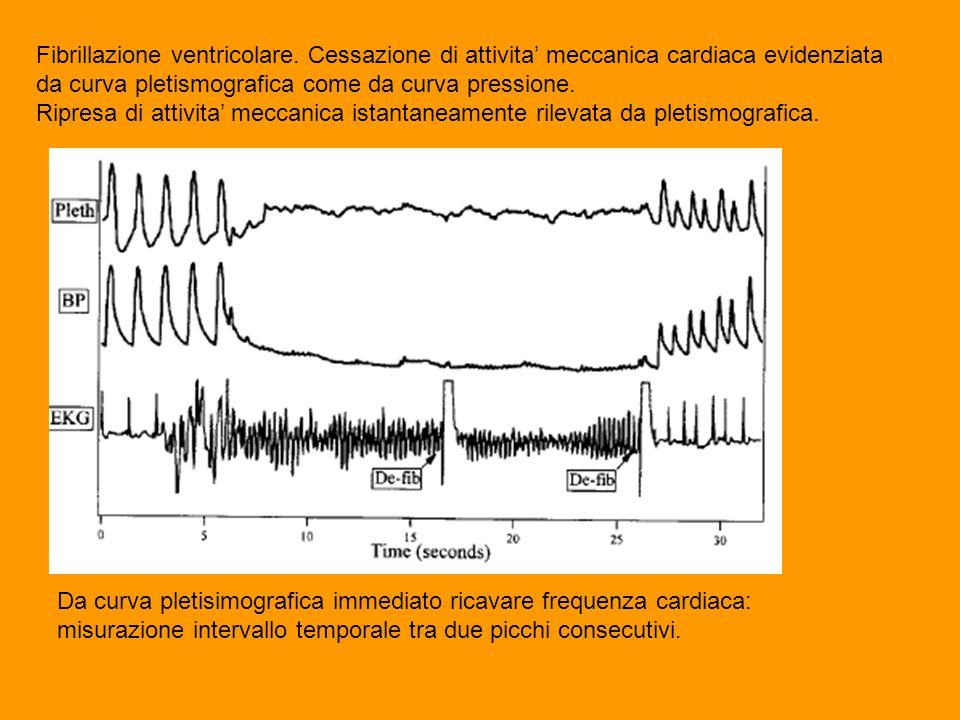 Fibrillazione ventricolare. Cessazione di attivita' meccanica cardiaca evidenziata da curva pletismografica come da curva pressione. Ripresa di attivi