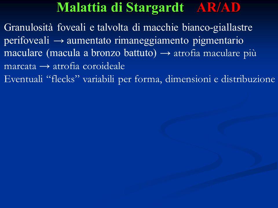 Malattia di Stargardt AR/AD Granulosità foveali e talvolta di macchie bianco-giallastre perifoveali → aumentato rimaneggiamento pigmentario maculare (