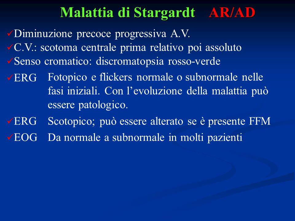Malattia di Stargardt AR/AD Diminuzione precoce progressiva A.V. C.V.: scotoma centrale prima relativo poi assoluto Senso cromatico: discromatopsia ro