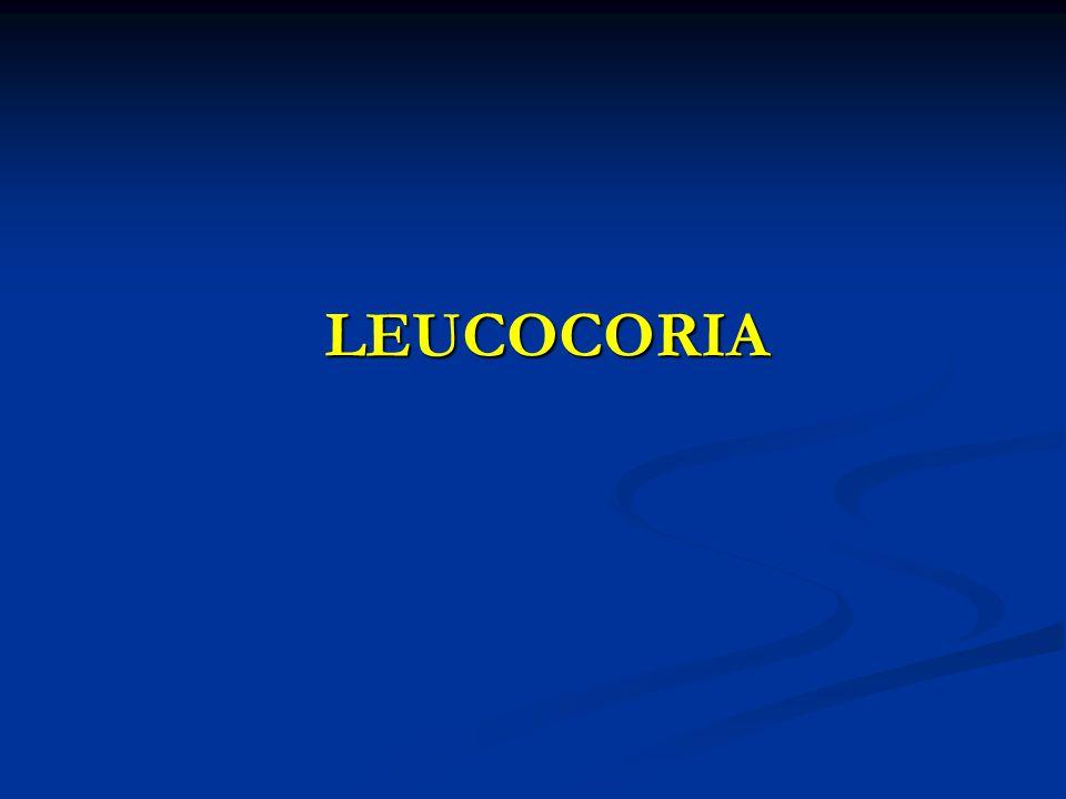 LEUCOCORIA