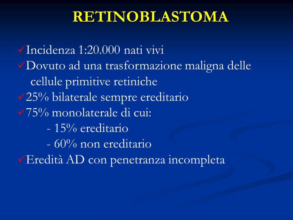 RETINOBLASTOMA Incidenza 1:20.000 nati vivi Dovuto ad una trasformazione maligna delle cellule primitive retiniche 25% bilaterale sempre ereditario 75