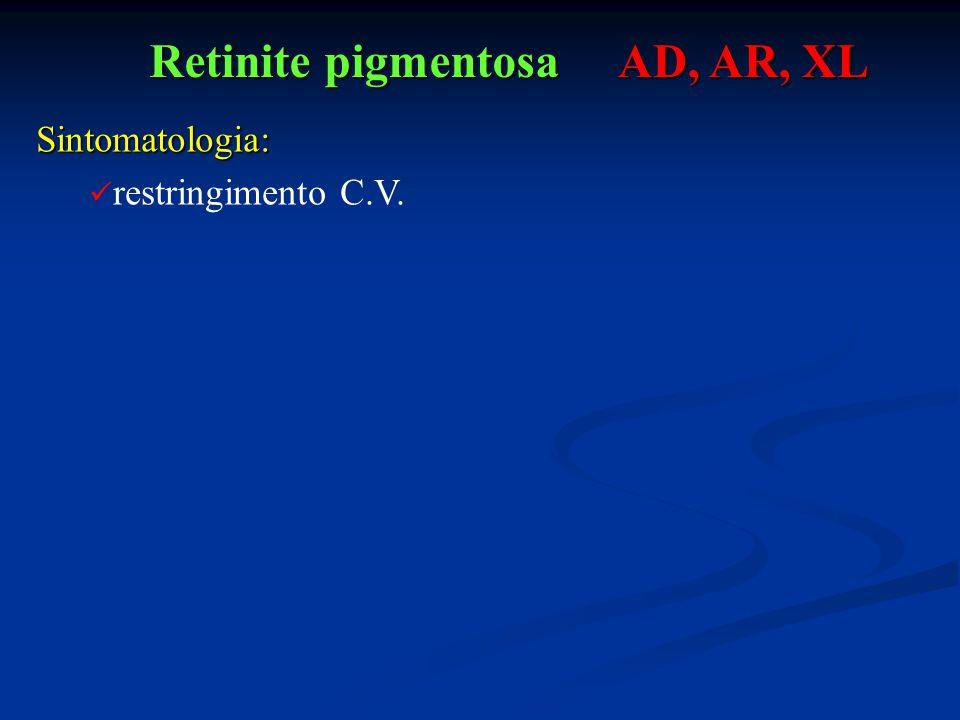 Retinite pigmentosa AD, AR, XL Sintomatologia: restringimento C.V.