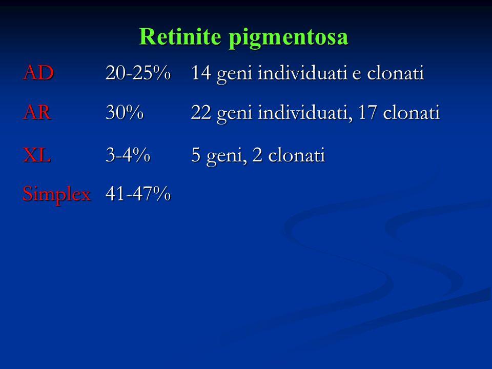 Retinite pigmentosa AD20-25% 14 geni individuati e clonati AR30% 22 geni individuati, 17 clonati XL3-4% 5 geni, 2 clonati Simplex41-47%