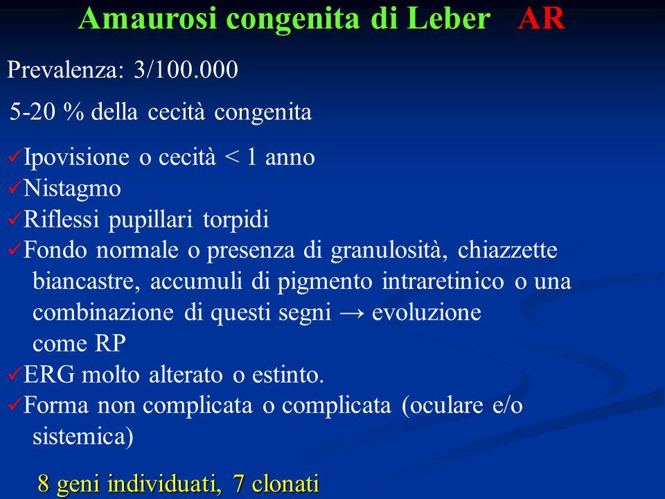 Amaurosi congenita di Leber AR Ipovisione o cecità < 1 anno Nistagmo Riflessi pupillari torpidi Fondo normale o presenza di granulosità, chiazzette bi