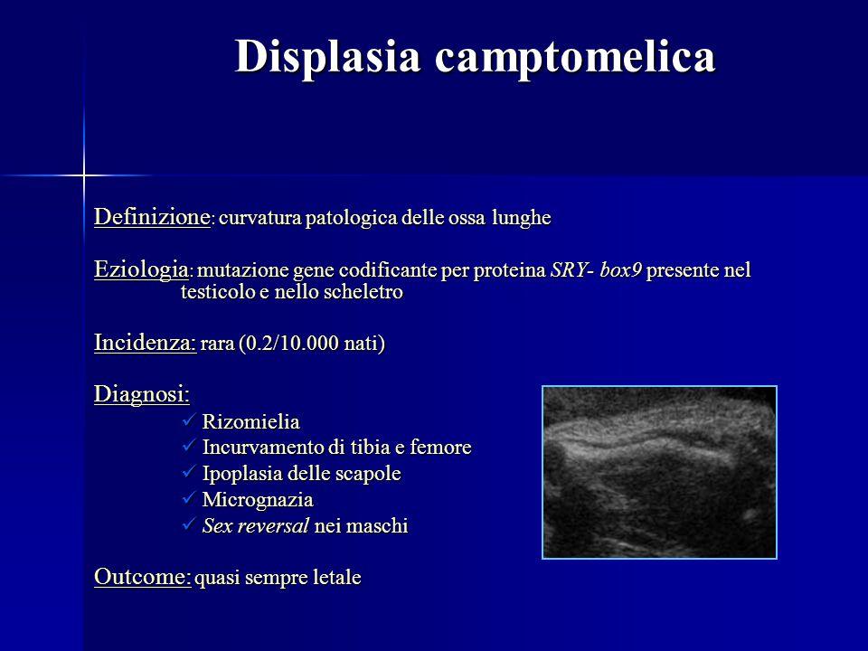 Displasia camptomelica Definizione : curvatura patologica delle ossa lunghe Eziologia : mutazione gene codificante per proteina SRY- box9 presente nel testicolo e nello scheletro Incidenza: rara (0.2/10.000 nati) Diagnosi: Rizomielia Rizomielia Incurvamento di tibia e femore Incurvamento di tibia e femore Ipoplasia delle scapole Ipoplasia delle scapole Micrognazia Micrognazia Sex reversal nei maschi Sex reversal nei maschi Outcome: quasi sempre letale
