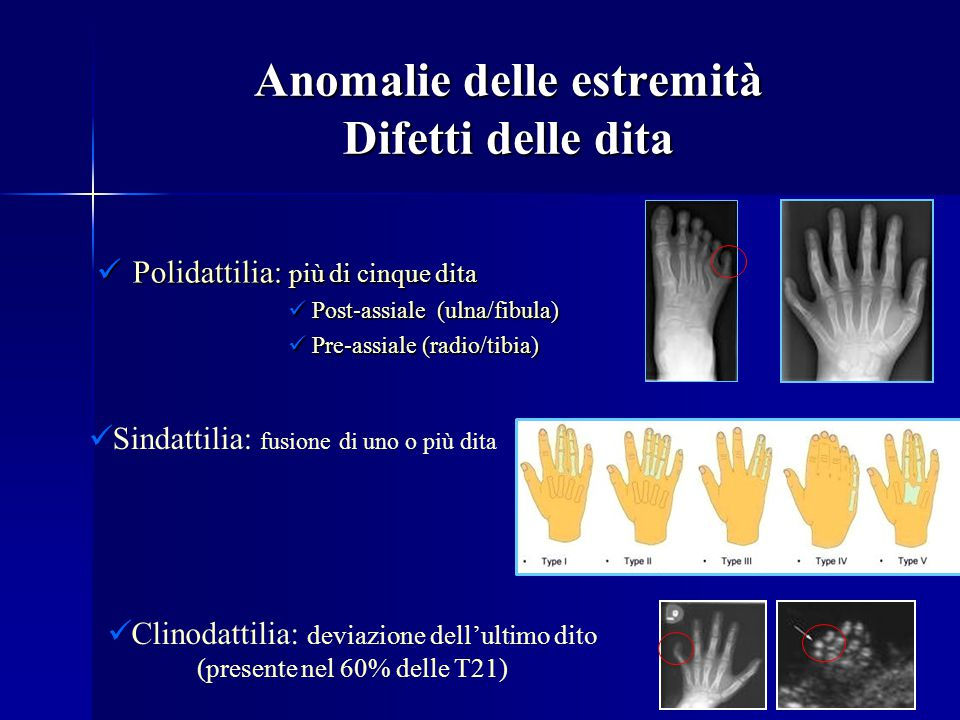 Anomalie delle estremità Difetti delle dita Polidattilia: più di cinque dita Polidattilia: più di cinque dita Post-assiale (ulna/fibula) Post-assiale (ulna/fibula) Pre-assiale (radio/tibia) Pre-assiale (radio/tibia) Sindattilia: fusione di uno o più dita Clinodattilia: deviazione dell'ultimo dito (presente nel 60% delle T21)