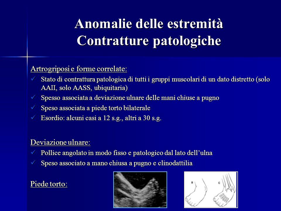 Anomalie delle estremità Contratture patologiche Artrogriposi e forme correlate: Stato di contrattura patologica di tutti i gruppi muscolari di un dat