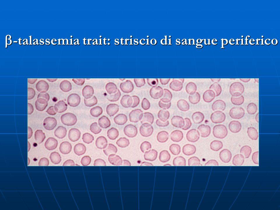  -talassemia trait: striscio di sangue periferico