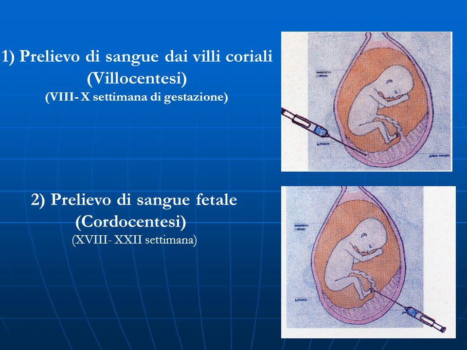1)Prelievo di sangue dai villi coriali (Villocentesi) (VIII- X settimana di gestazione) 2) Prelievo di sangue fetale (Cordocentesi) (XVIII- XXII setti
