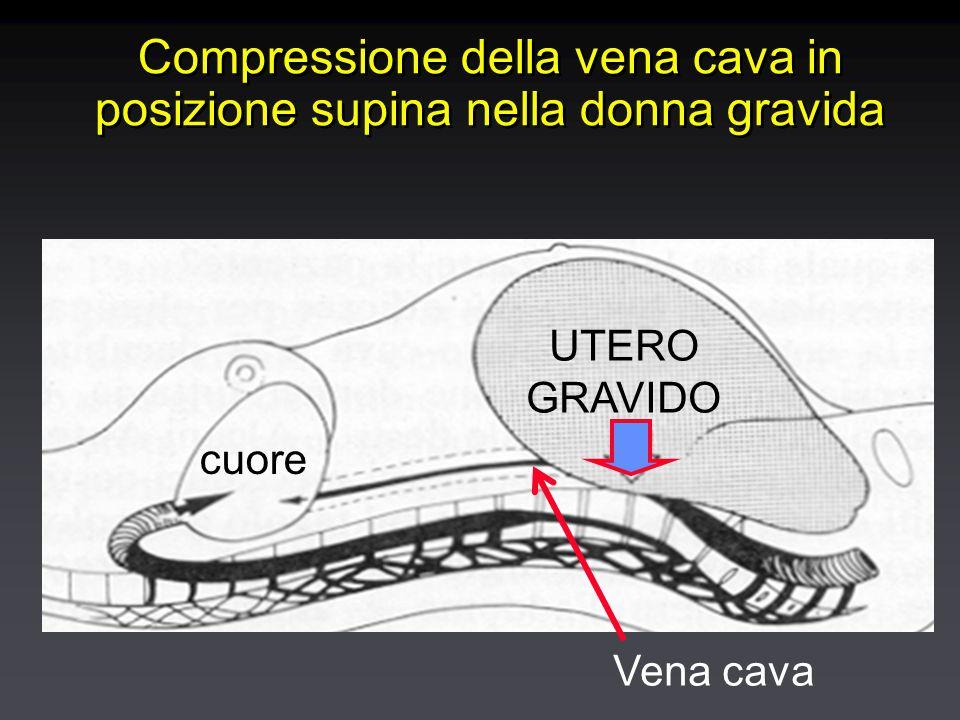 Compressione della vena cava in posizione supina nella donna gravida UTERO GRAVIDO cuore Vena cava