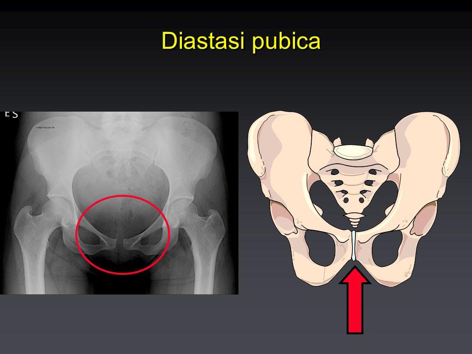 Diastasi pubica
