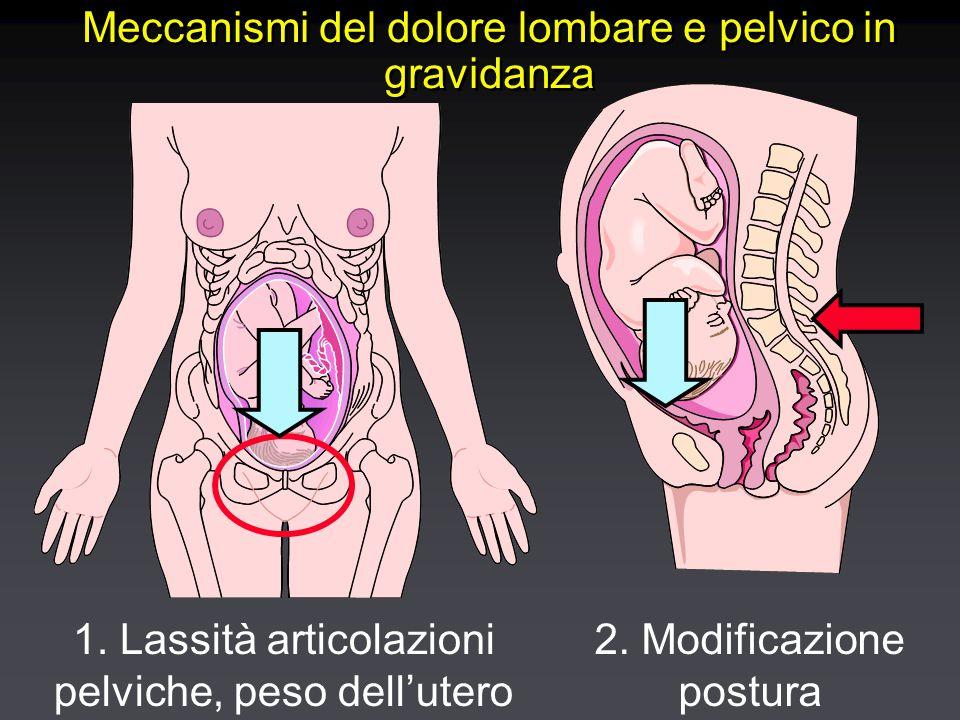 Meccanismi del dolore lombare e pelvico in gravidanza 1.