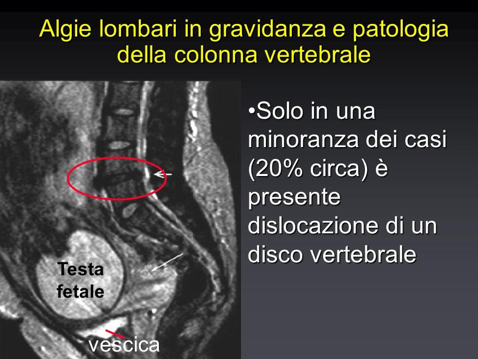 Algie lombari in gravidanza e patologia della colonna vertebrale Testa fetale vescica Solo in una minoranza dei casi (20% circa) è presente dislocazione di un disco vertebraleSolo in una minoranza dei casi (20% circa) è presente dislocazione di un disco vertebrale