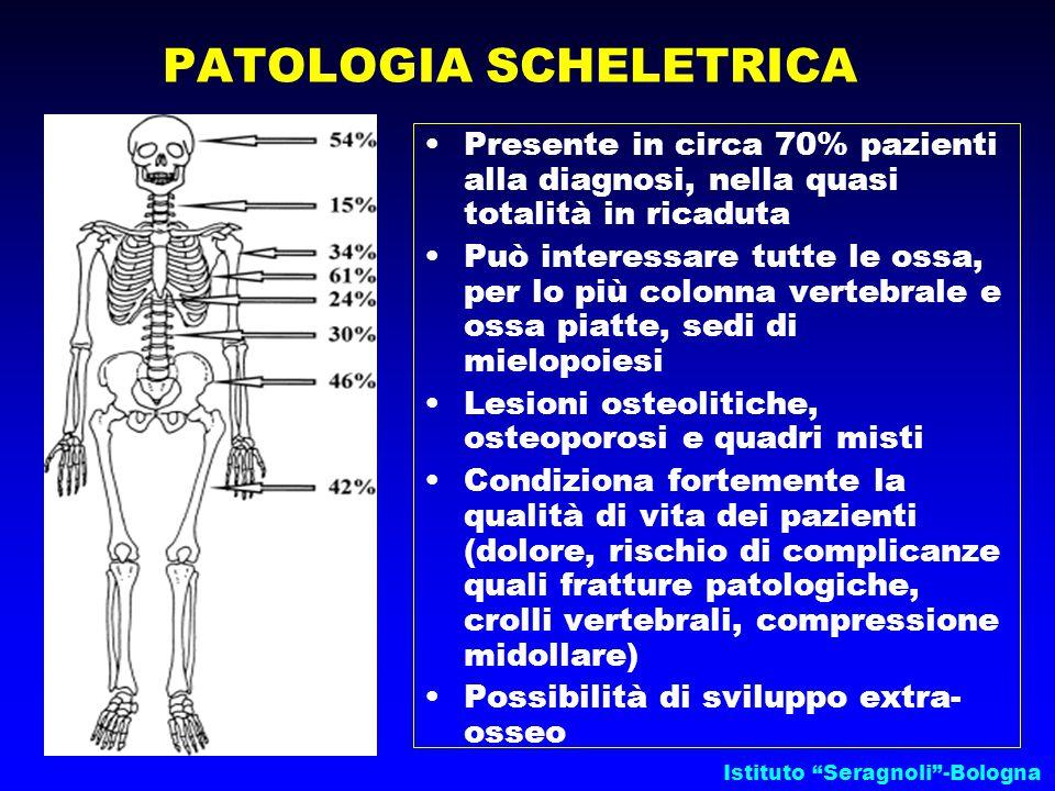 """Istituto """"Seragnoli""""-Bologna Presente in circa 70% pazienti alla diagnosi, nella quasi totalità in ricaduta Può interessare tutte le ossa, per lo più"""