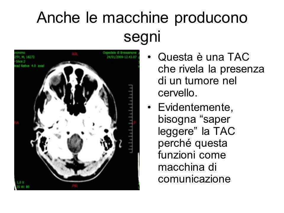 """Anche le macchine producono segni Questa è una TAC che rivela la presenza di un tumore nel cervello. Evidentemente, bisogna """"saper leggere"""" la TAC per"""