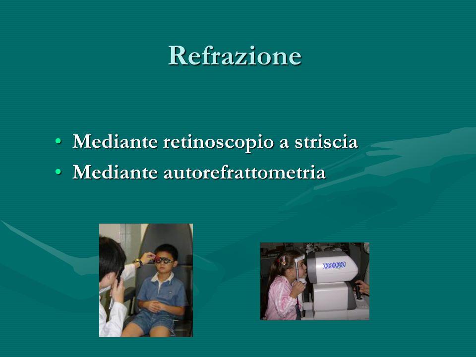 Refrazione Mediante retinoscopio a strisciaMediante retinoscopio a striscia Mediante autorefrattometriaMediante autorefrattometria