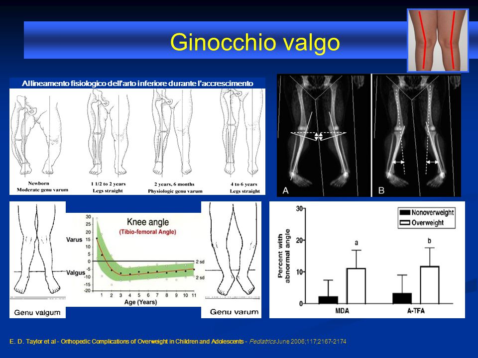Ginocchio valgo E. D. Taylor et al - Orthopedic Complications of Overweight in Children and Adolescents - Pediatrics June 2006;117;2167-2174 Allineame
