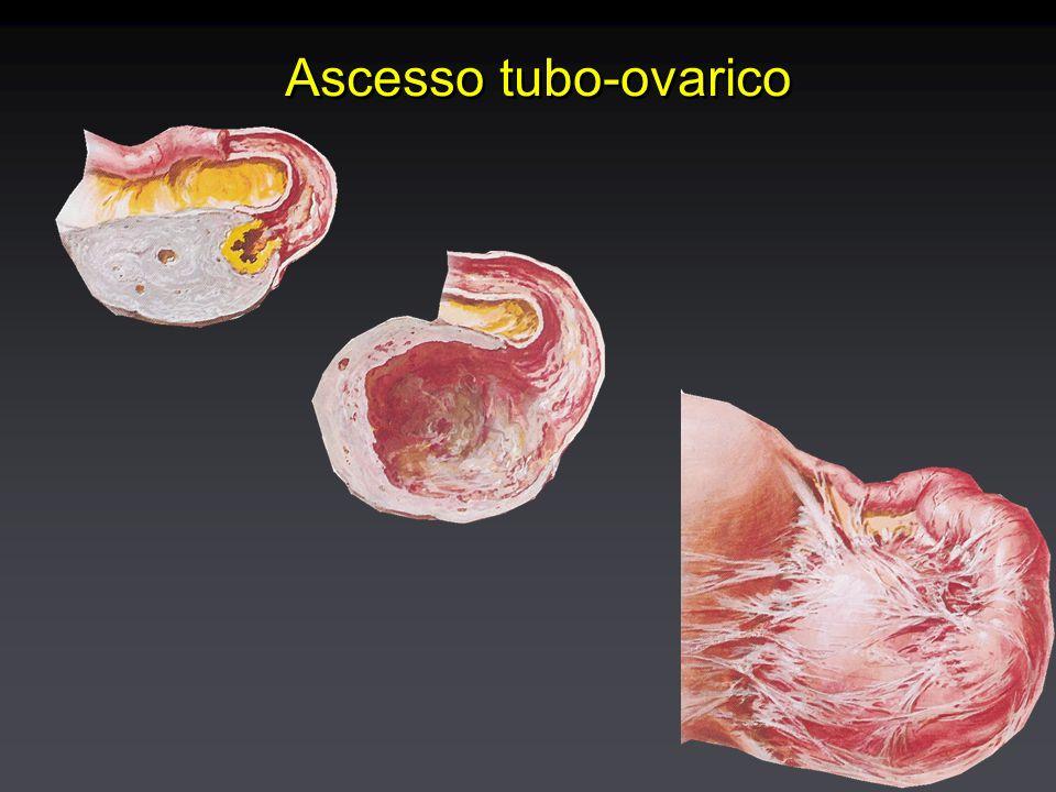 Ascesso tubo-ovarico