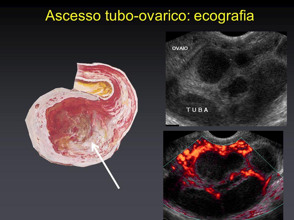 Ascesso tubo-ovarico: ecografia