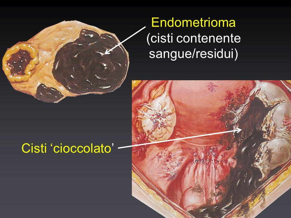 Patogenesi degli endometriomi Mucosa endometriale che riveste le pareti Accumulo di materiale desquamato Reazione fibrosclerotica del parenchima adiacente Mucosa endometriale che riveste le pareti Accumulo di materiale desquamato Reazione fibrosclerotica del parenchima adiacente