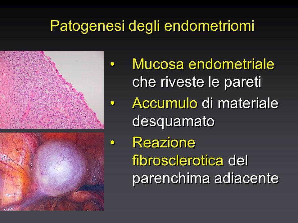 Endometriosi: anatomia-patologica e classificazione Foci endometriosici: aree di colore scuro (terra bruciata), rosso-fiamma o bianco-opache sulla superficie del peritoneoFoci endometriosici: aree di colore scuro (terra bruciata), rosso-fiamma o bianco-opache sulla superficie del peritoneo AderenzeAderenze Endometriomi: cisti soprattutto ovarica contenente materiale desquamato e sangue (cisti cioccolato)Endometriomi: cisti soprattutto ovarica contenente materiale desquamato e sangue (cisti cioccolato) Foci endometriosici: aree di colore scuro (terra bruciata), rosso-fiamma o bianco-opache sulla superficie del peritoneoFoci endometriosici: aree di colore scuro (terra bruciata), rosso-fiamma o bianco-opache sulla superficie del peritoneo AderenzeAderenze Endometriomi: cisti soprattutto ovarica contenente materiale desquamato e sangue (cisti cioccolato)Endometriomi: cisti soprattutto ovarica contenente materiale desquamato e sangue (cisti cioccolato)