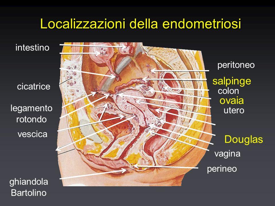 Comuni localizzazioni pelviche dell'endometriosi OvaioOvaio Cavo del DouglasCavo del Douglas Legamento largoLegamento largo Plica vescico-uterinaPlica vescico-uterina Legamenti utero-sacraliLegamenti utero-sacrali Tube di FalloppioTube di Falloppio OvaioOvaio Cavo del DouglasCavo del Douglas Legamento largoLegamento largo Plica vescico-uterinaPlica vescico-uterina Legamenti utero-sacraliLegamenti utero-sacrali Tube di FalloppioTube di Falloppio