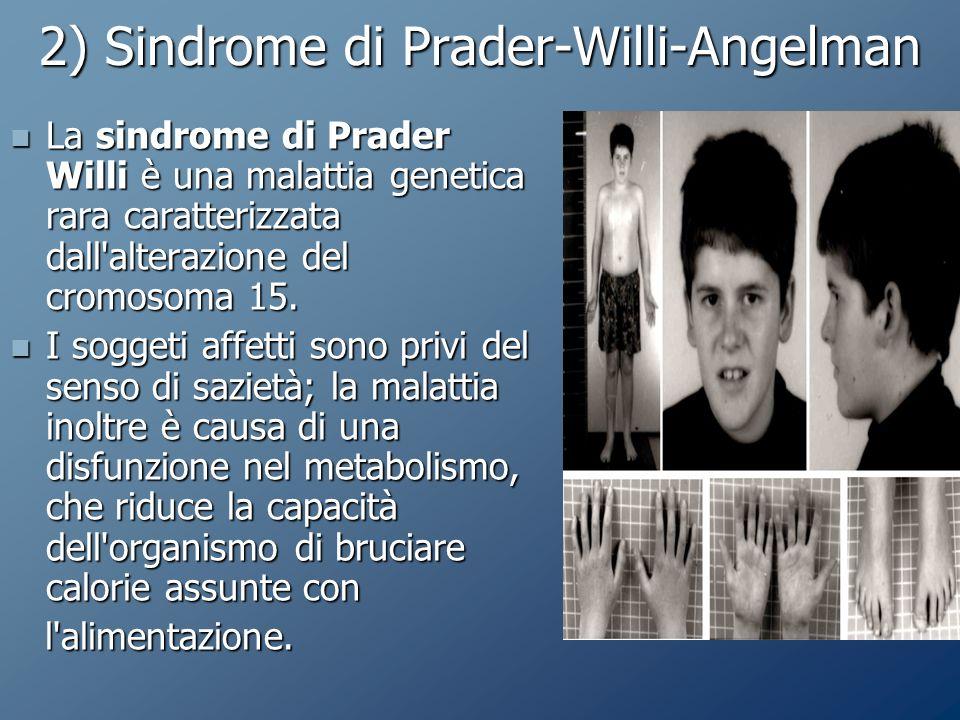 2) Sindrome di Prader-Willi-Angelman La sindrome di Prader Willi è una malattia genetica rara caratterizzata dall alterazione del cromosoma 15.