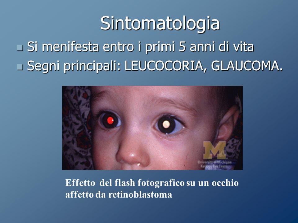 Sintomatologia Si menifesta entro i primi 5 anni di vita Si menifesta entro i primi 5 anni di vita Segni principali: LEUCOCORIA, GLAUCOMA.
