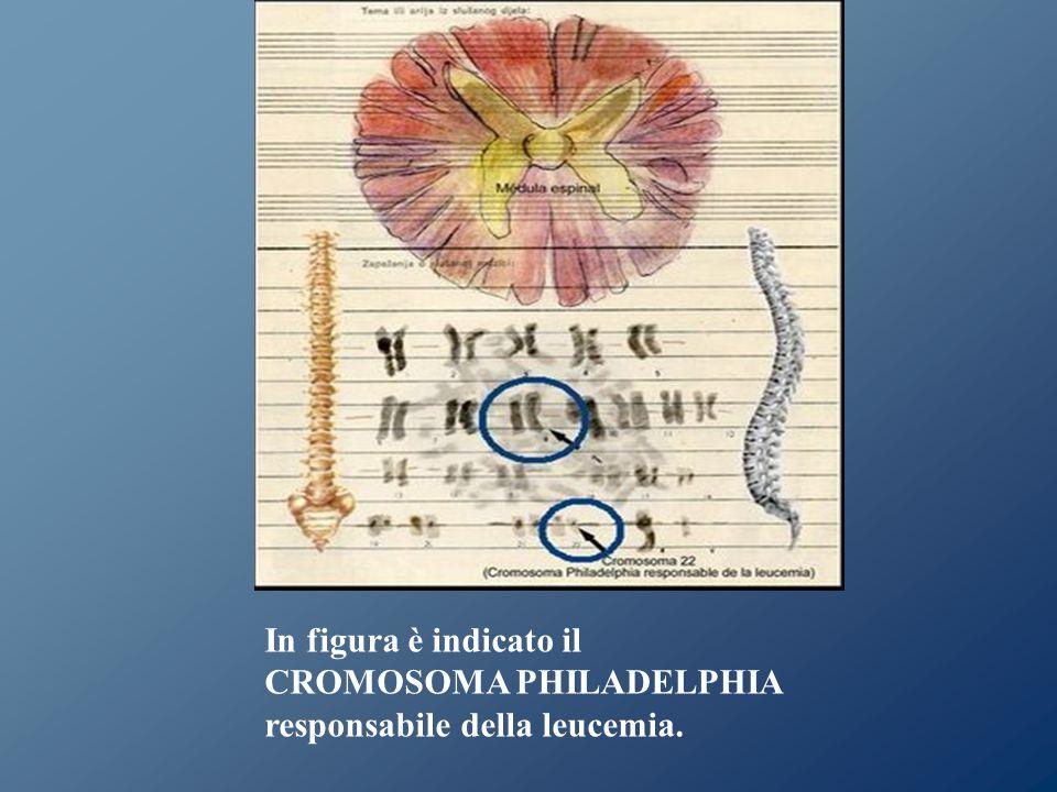 In figura è indicato il CROMOSOMA PHILADELPHIA responsabile della leucemia.