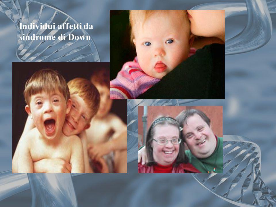 Individui affetti da sindrome di Down