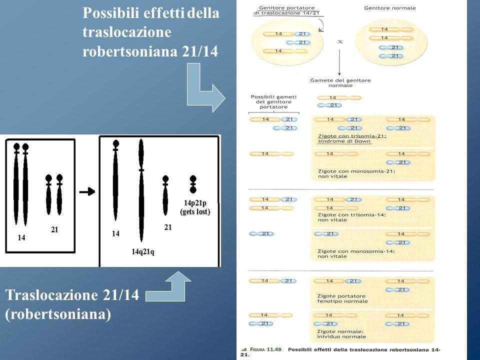 Traslocazione 21/14 (robertsoniana) Possibili effetti della traslocazione robertsoniana 21/14