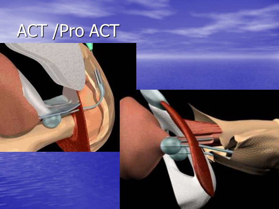 ACT /Pro ACT