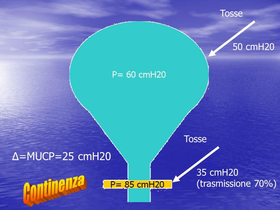 Δ=MUCP=25 cmH20 50 cmH20 Tosse 35 cmH20 (trasmissione 70%) Tosse
