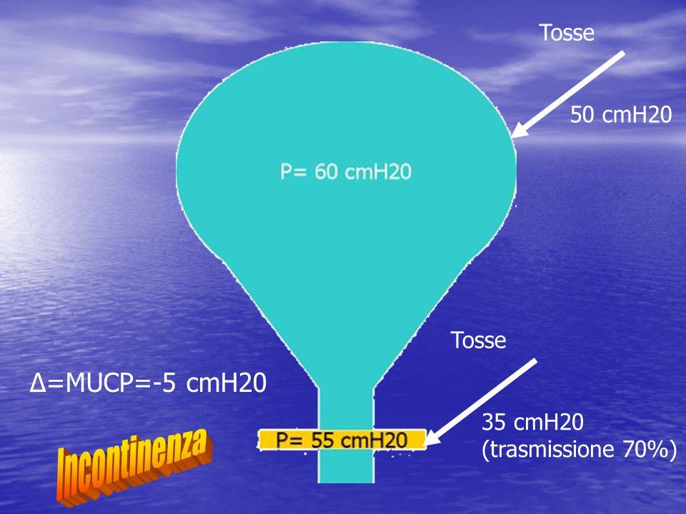 Δ=MUCP=-5 cmH20 50 cmH20 Tosse 35 cmH20 (trasmissione 70%) Tosse