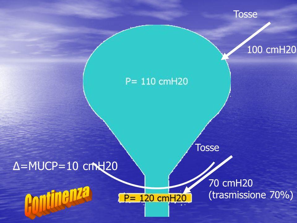 Δ=MUCP=10 cmH20 100 cmH20 Tosse 70 cmH20 (trasmissione 70%) Tosse
