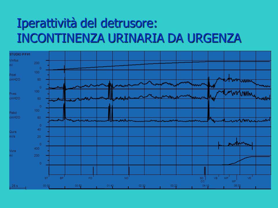 Iperattività del detrusore: INCONTINENZA URINARIA DA URGENZA Vinfus ml 0 200 Pdet cmH2O 0 50 100 Pves cmH2O 0 50 100 Pabd cmH2O 0 50 100 Qura ml/s 0 2
