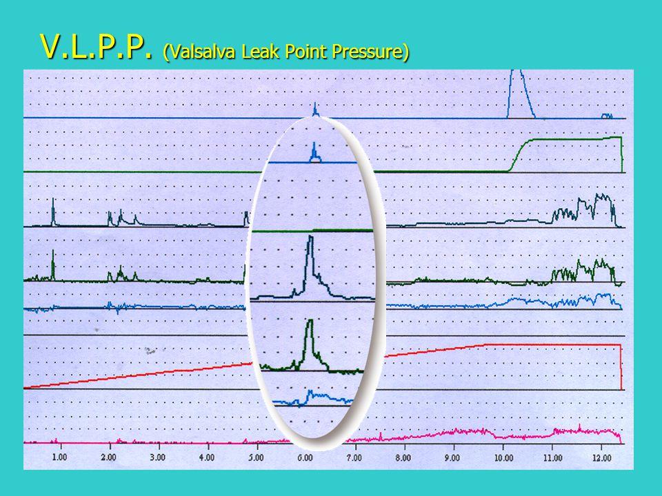 V.L.P.P. (Valsalva Leak Point Pressure)