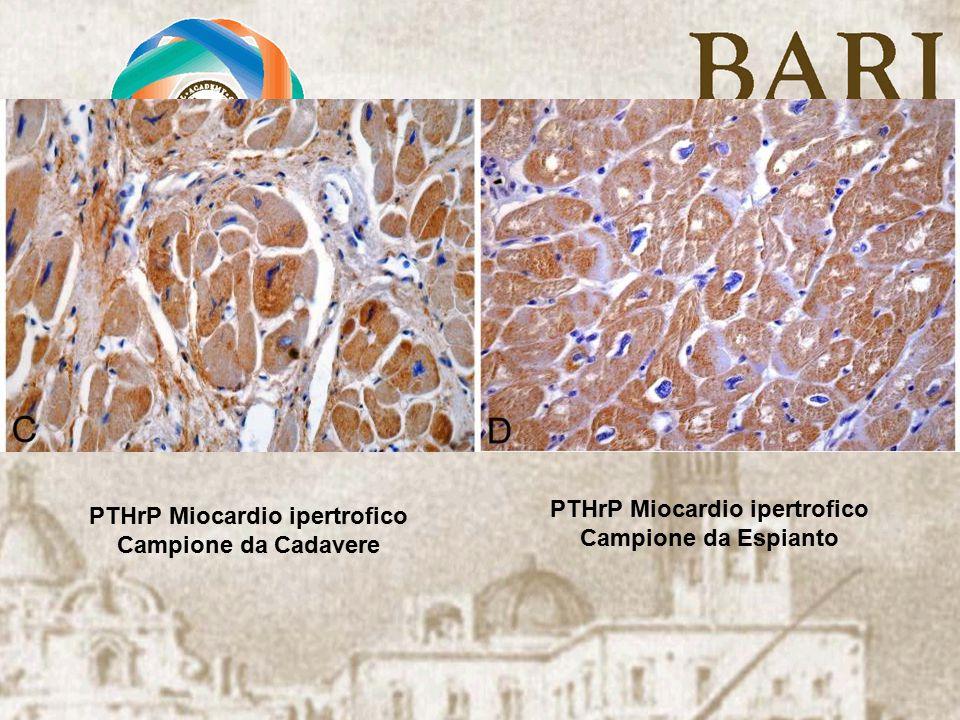 PTHrP Miocardio ipertrofico Campione da Cadavere PTHrP Miocardio ipertrofico Campione da Espianto