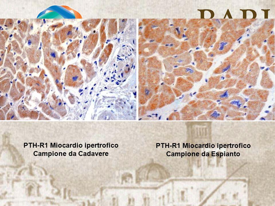 PTH-R1 Miocardio ipertrofico Campione da Cadavere PTH-R1 Miocardio ipertrofico Campione da Espianto
