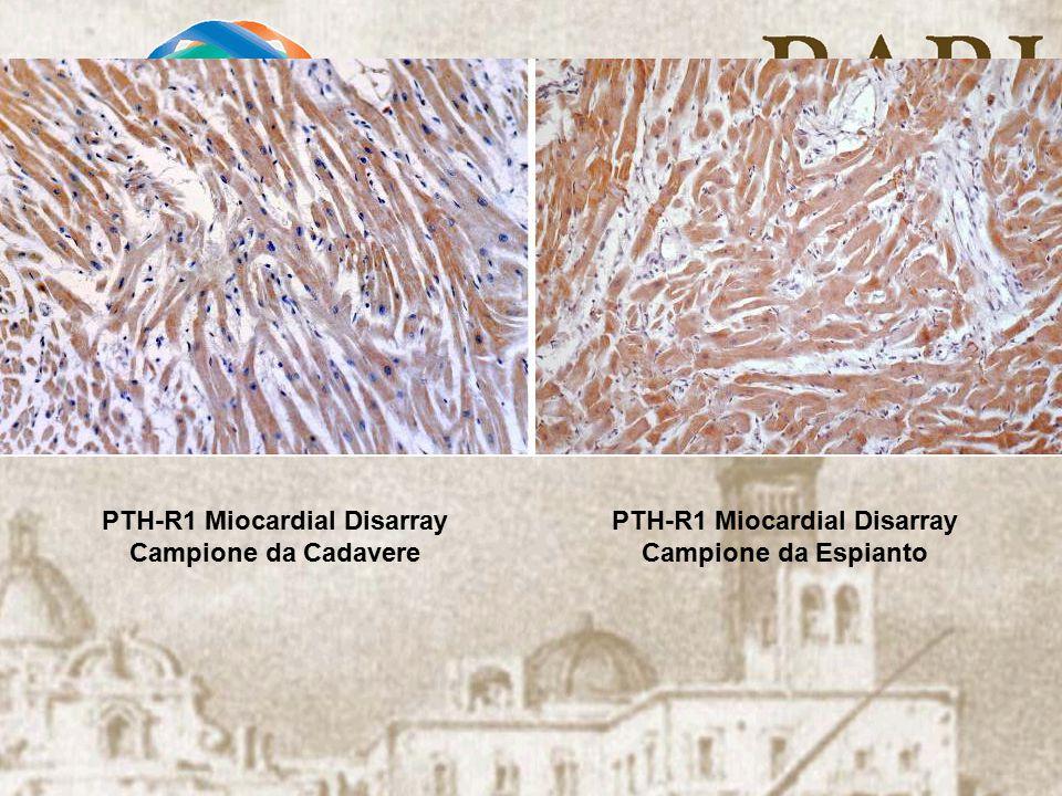 PTH-R1 Miocardial Disarray Campione da Cadavere PTH-R1 Miocardial Disarray Campione da Espianto