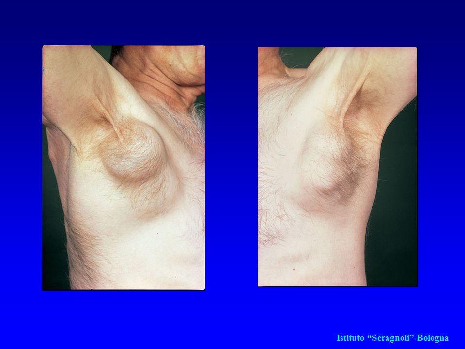 LEUCEMIA A CELLULE CAPELLUTE (HAIRY CELL LEUKEMIA) (HCL) La clinica è rappresentata per lo più da splenomegalia di grado variabile, talora marcata Anemia, neutropenia e piastrinopenia Astenia, affaticabilità, calo ponderale, infezioni La diagnosi si fonda sul riscontro delle cellule hairy, sulla biopsia ossea e sull'immunofenotipo La terapia è molto efficace sia all'esordio che ad eventuale ripresa di malattia.