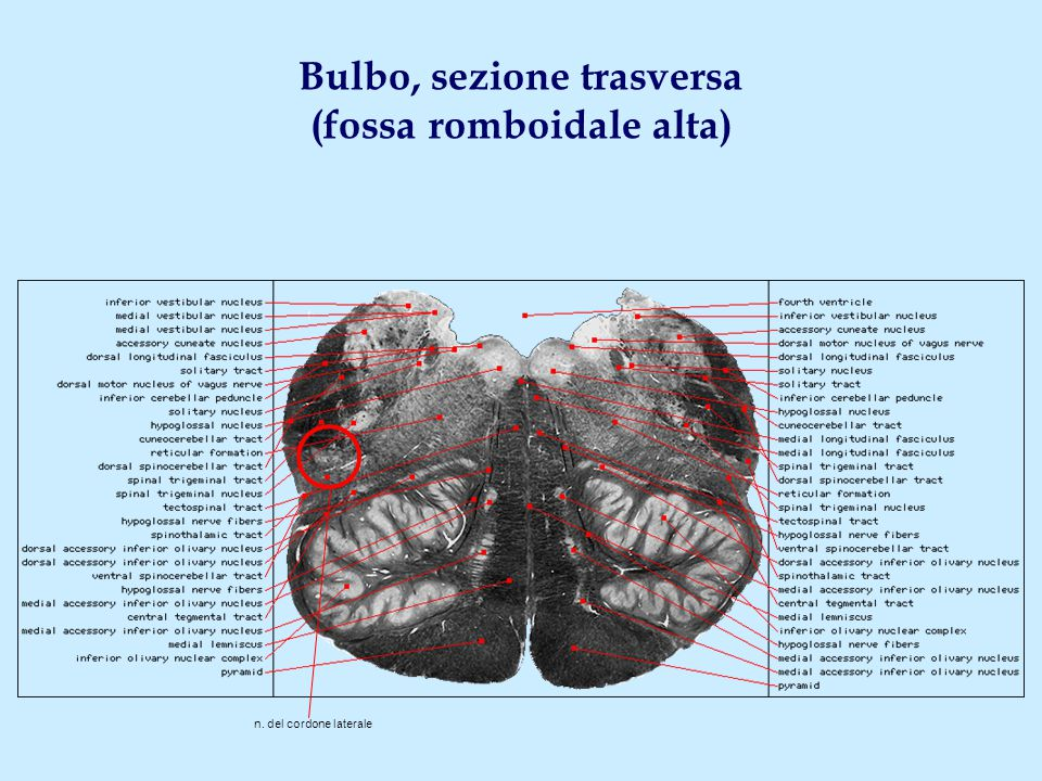Bulbo, sezione trasversa (fossa romboidale alta) n. del cordone laterale