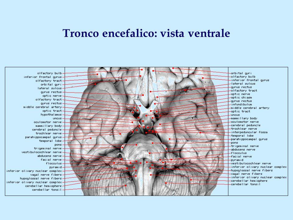 Tronco encefalico: vista ventrale