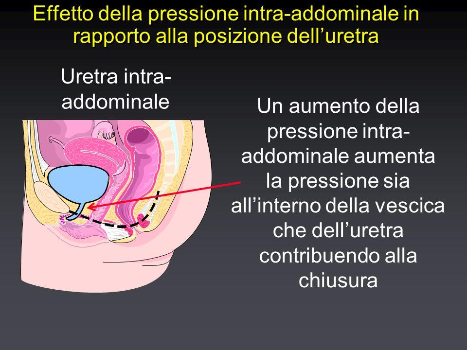 Effetto della pressione intra-addominale in rapporto alla posizione dell'uretra Un aumento della pressione intra- addominale aumenta la pressione sia all'interno della vescica che dell'uretra contribuendo alla chiusura Uretra intra- addominale