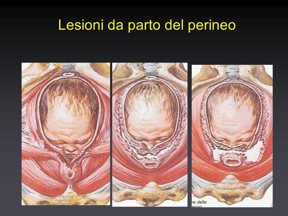 Lesioni da parto del perineo