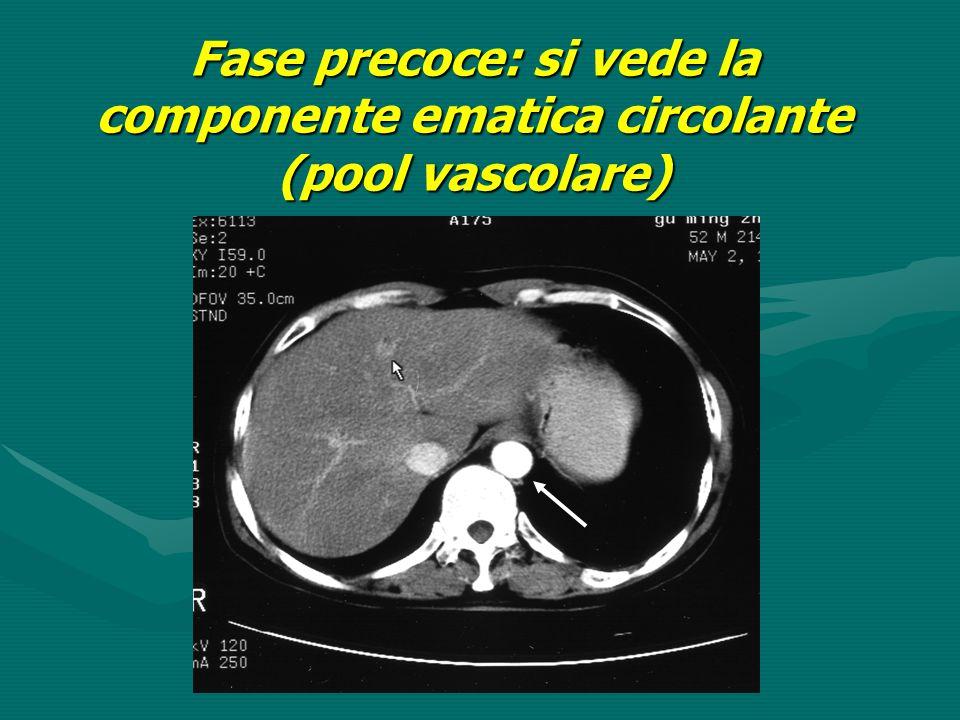 Fase precoce: si vede la componente ematica circolante (pool vascolare)
