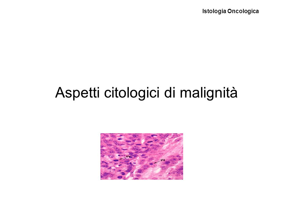 Aspetti citologici di malignità Istologia Oncologica